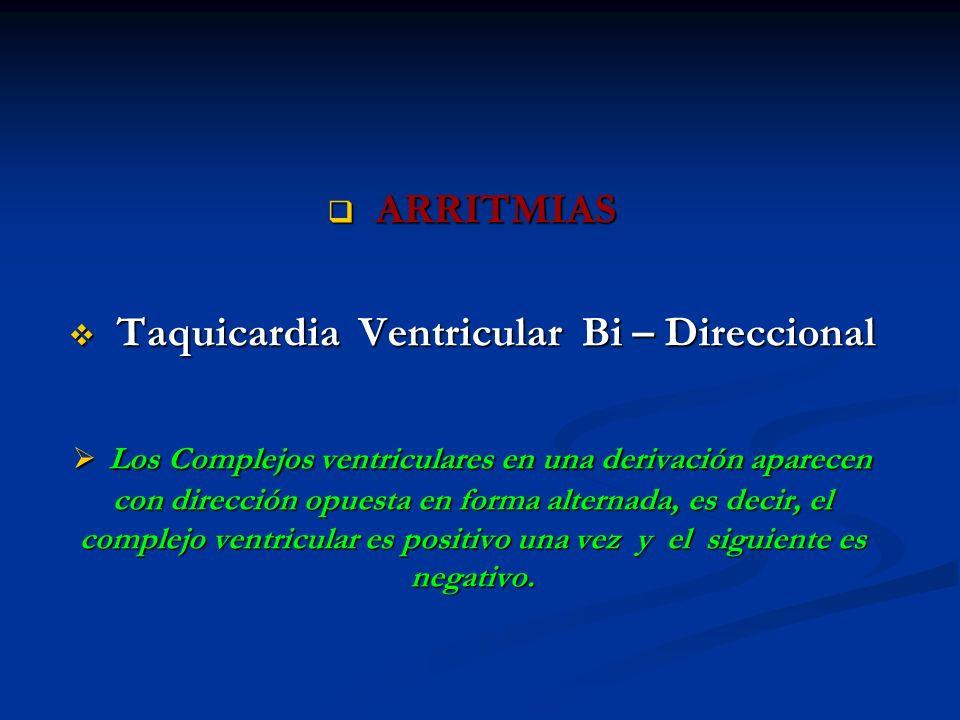 Taquicardia Ventricular Bi – Direccional