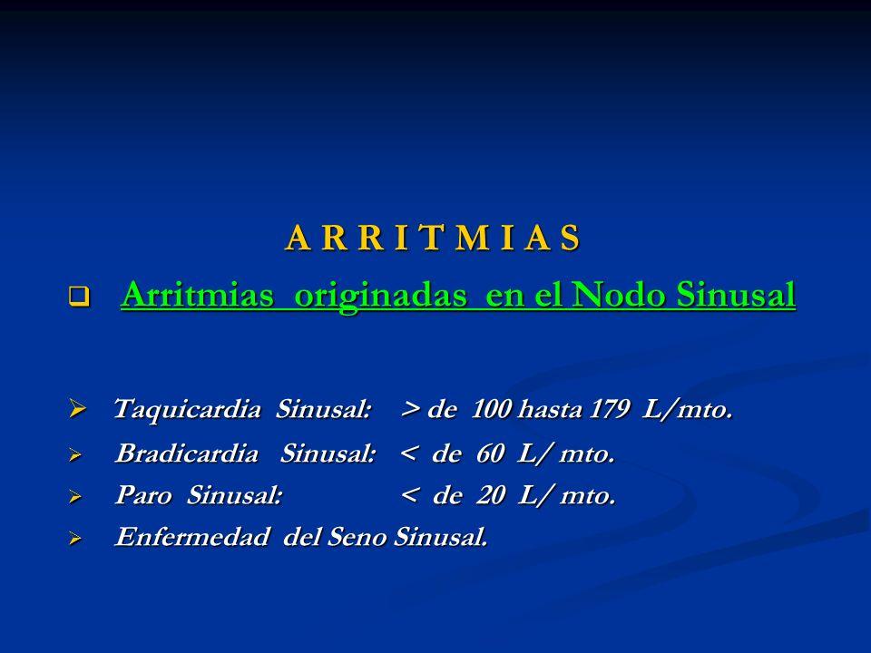Arritmias originadas en el Nodo Sinusal