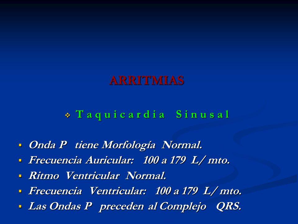 ARRITMIAS Onda P tiene Morfología Normal.