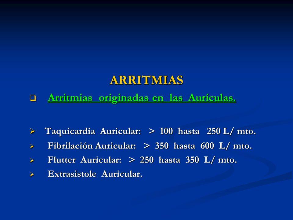 ARRITMIAS Arritmias originadas en las Aurículas.