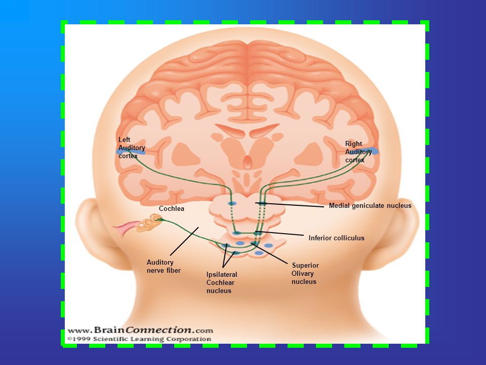Left Auditory. cortex. Right. Auditory. cortex. Medial geniculate nucleus. Cochlea. Inferior colliculus.