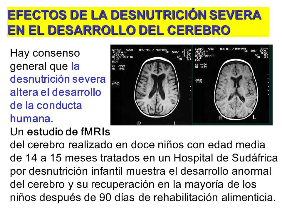 EFECTOS DE LA DESNUTRICIÓN SEVERA EN EL DESARROLLO DEL CEREBRO