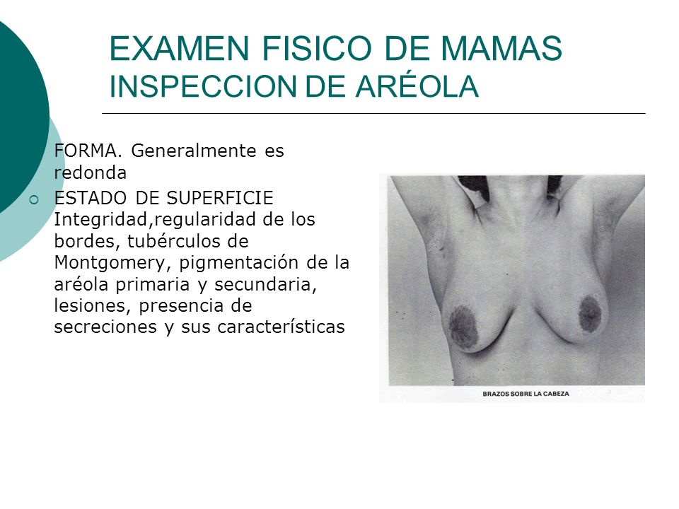 EXAMEN FISICO DE MAMAS INSPECCION DE ARÉOLA