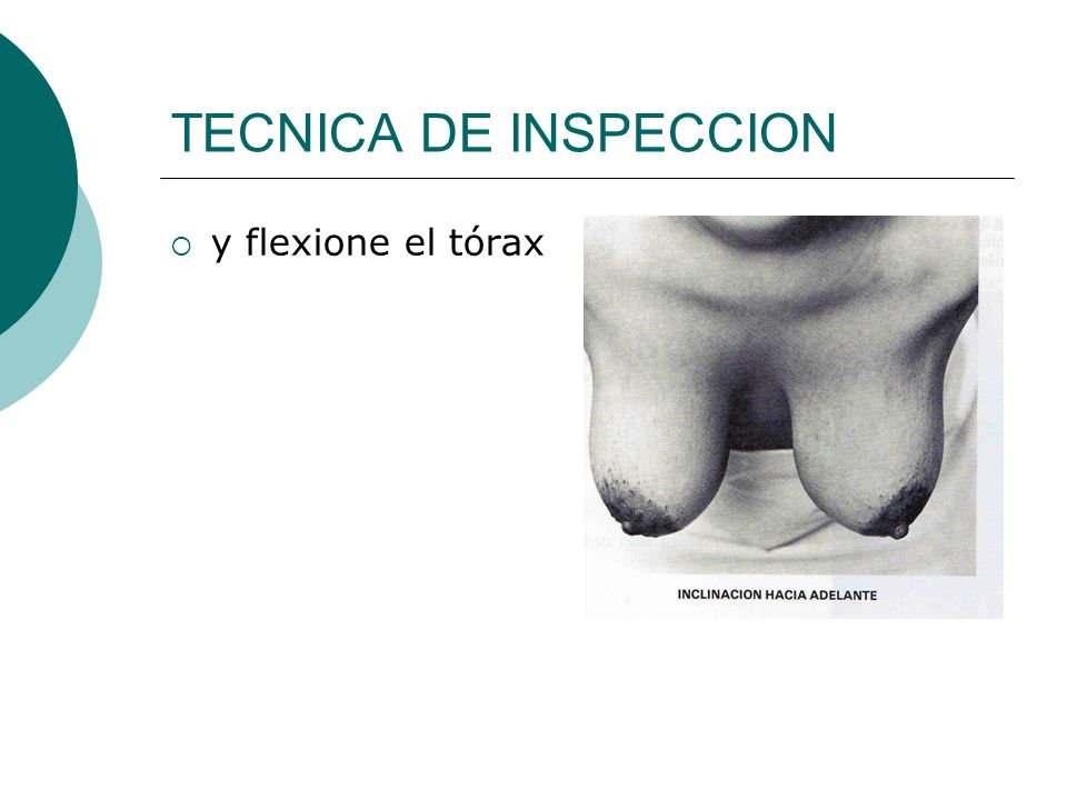 TECNICA DE INSPECCION y flexione el tórax