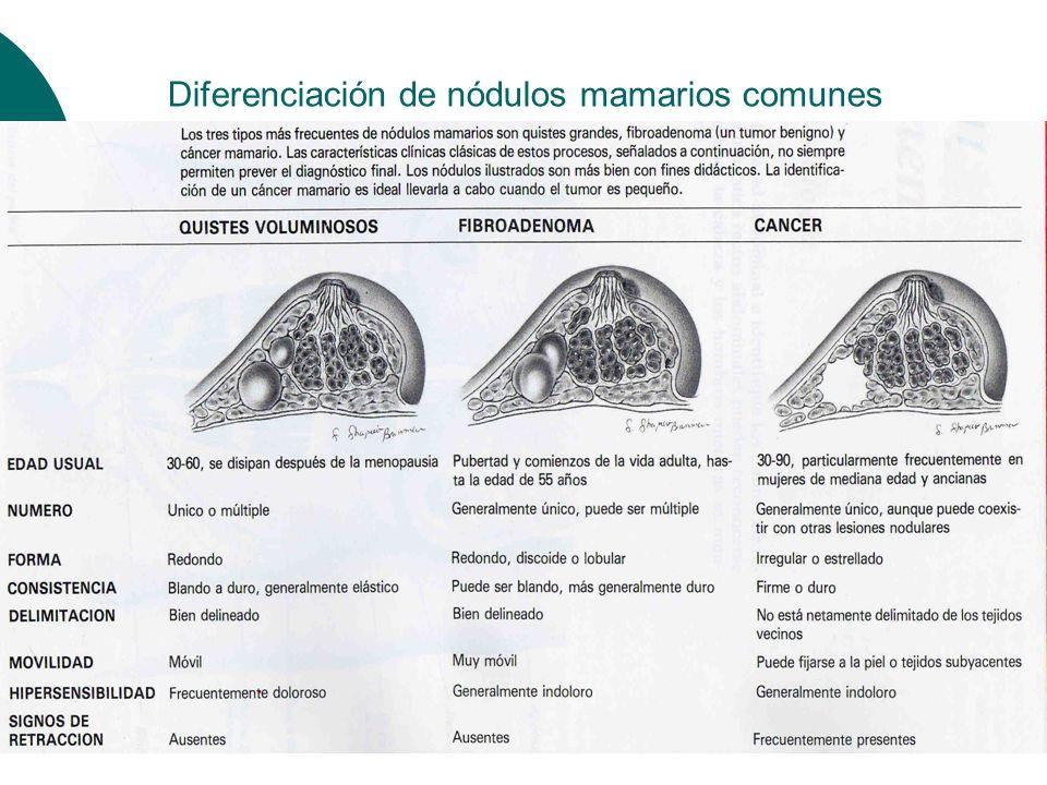 Diferenciación de nódulos mamarios comunes