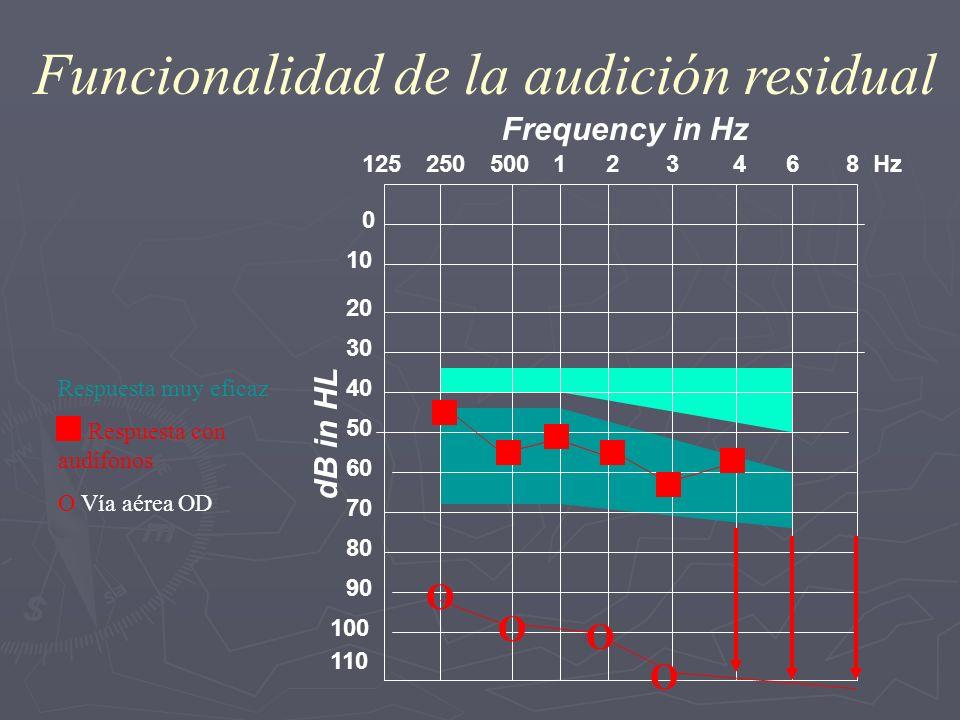 Funcionalidad de la audición residual