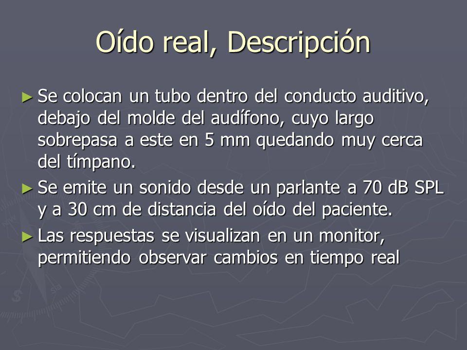 Oído real, Descripción