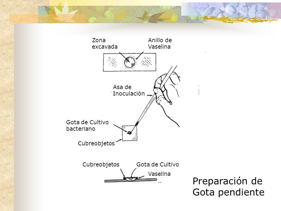 Preparación de Gota pendiente