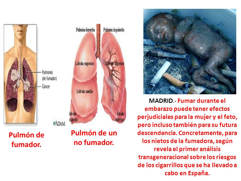 Pulmón de un no fumador. Pulmón de fumador.
