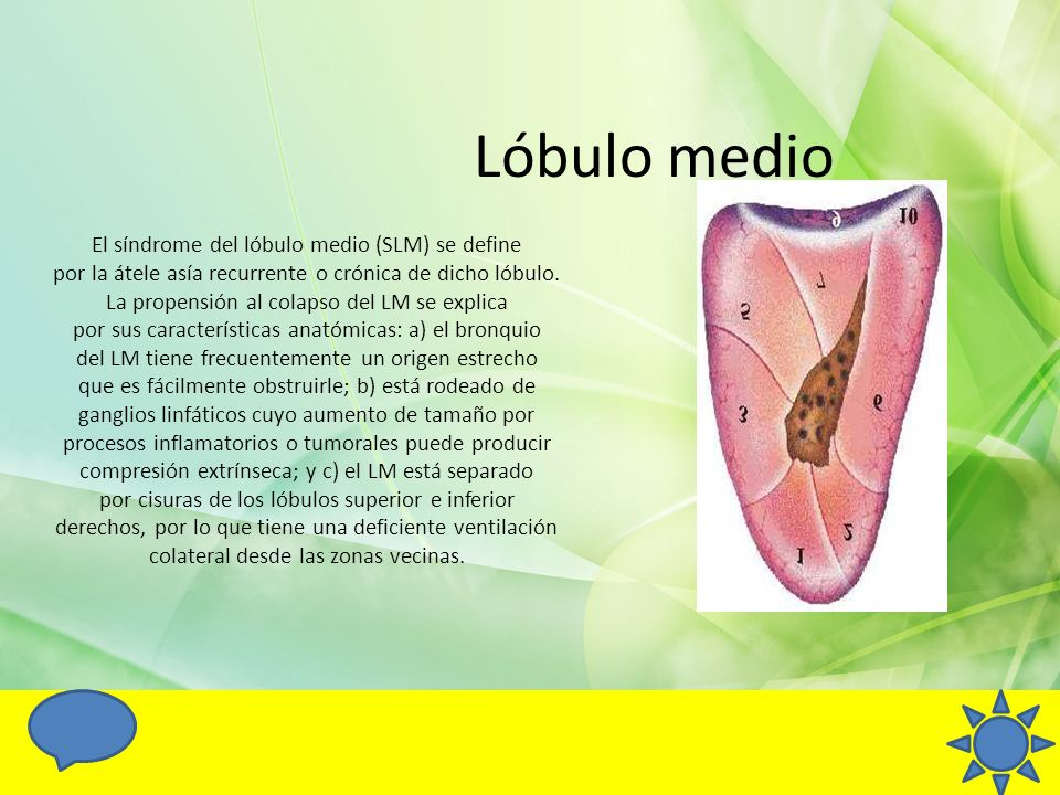 Lóbulo medio El síndrome del lóbulo medio (SLM) se define