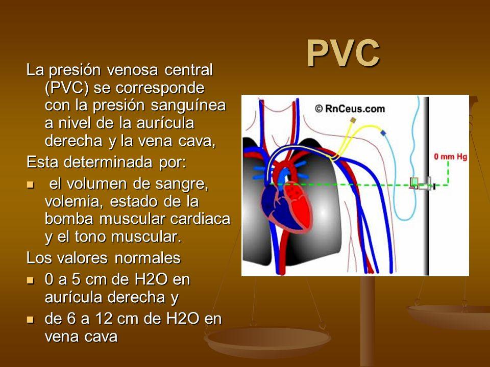 PVC La presión venosa central (PVC) se corresponde con la presión sanguínea a nivel de la aurícula derecha y la vena cava,