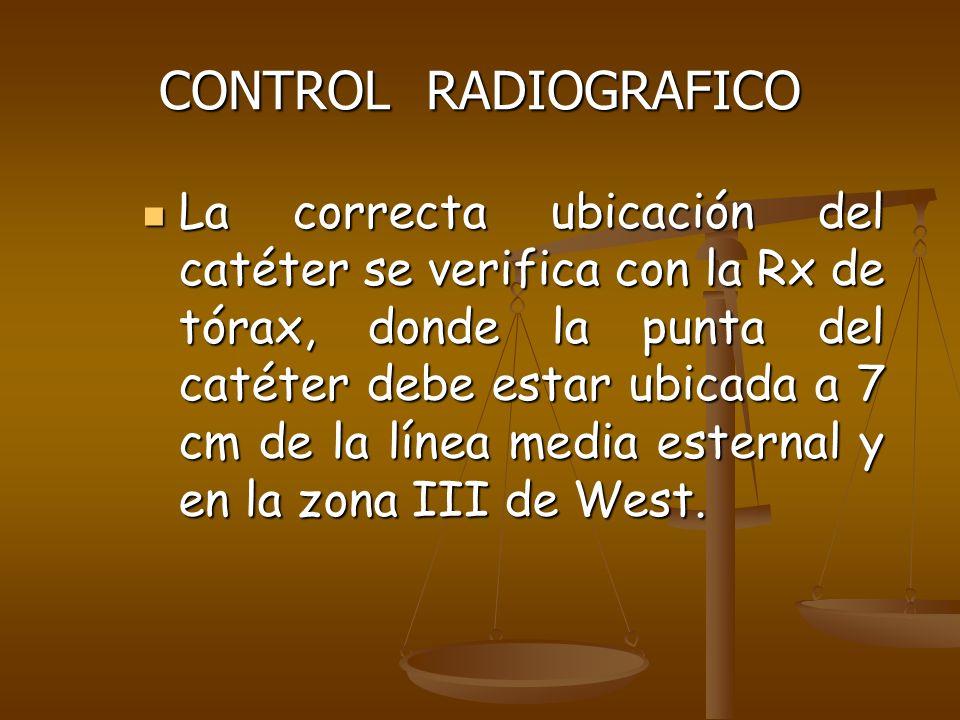 CONTROL RADIOGRAFICO
