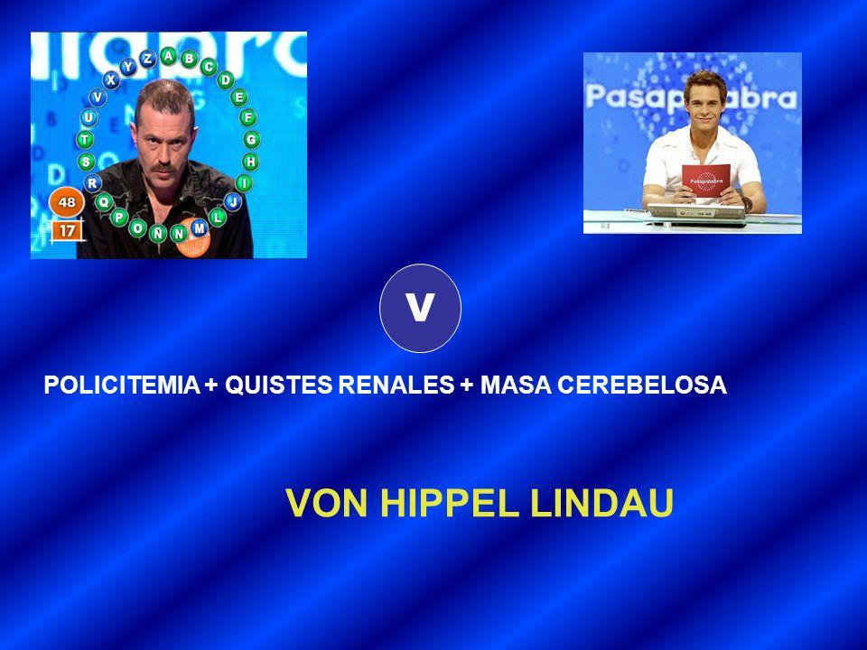 V POLICITEMIA + QUISTES RENALES + MASA CEREBELOSA VON HIPPEL LINDAU