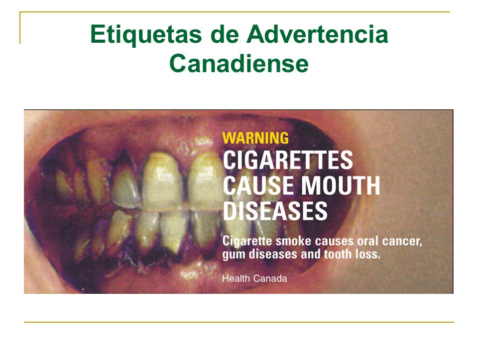 Etiquetas de Advertencia Canadiense