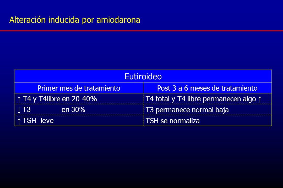 Alteración inducida por amiodarona