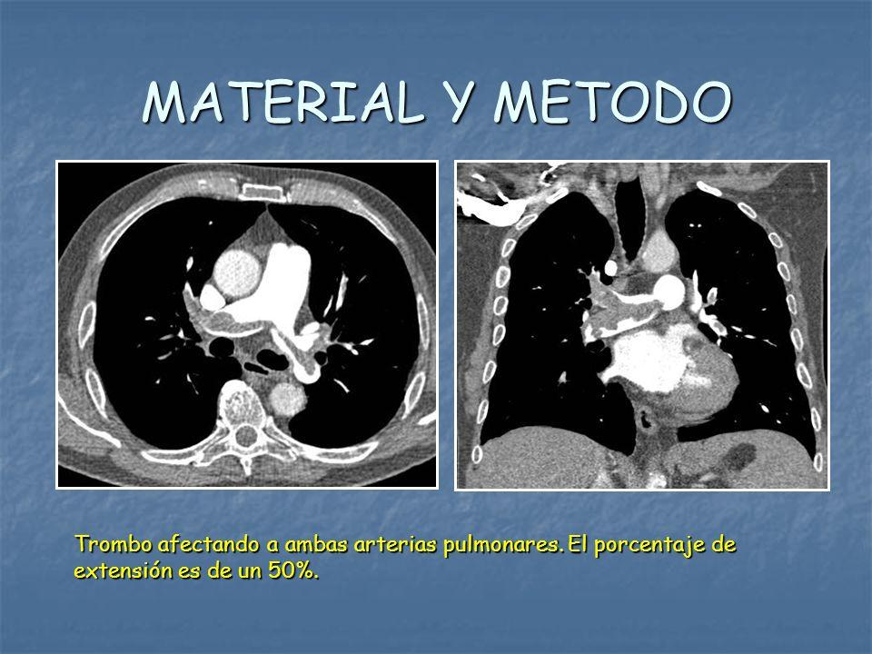 MATERIAL Y METODOTrombo afectando a ambas arterias pulmonares.
