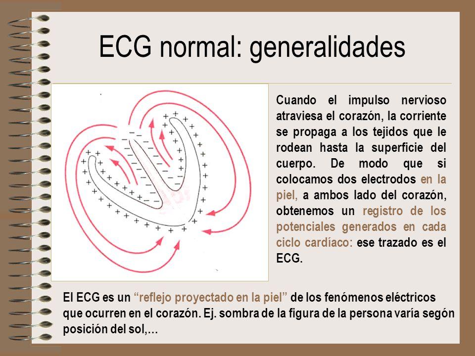 ECG normal: generalidades