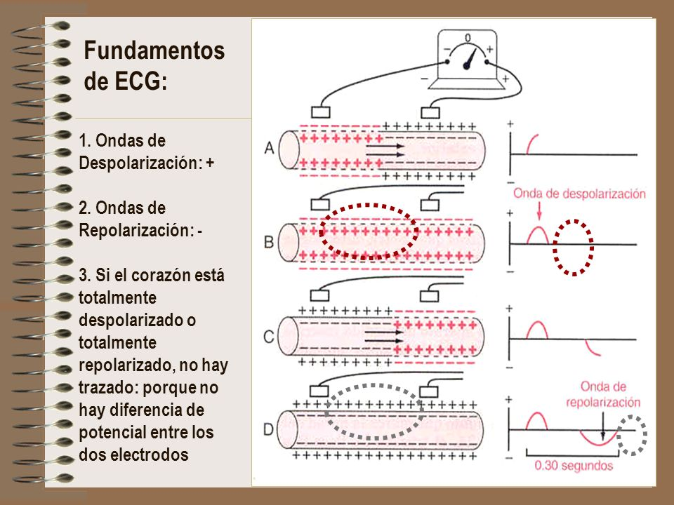 Fundamentos de ECG: 1. Ondas de Despolarización: + 2. Ondas de