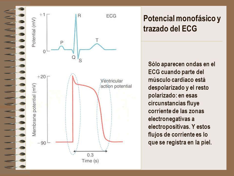 Potencial monofásico y trazado del ECG