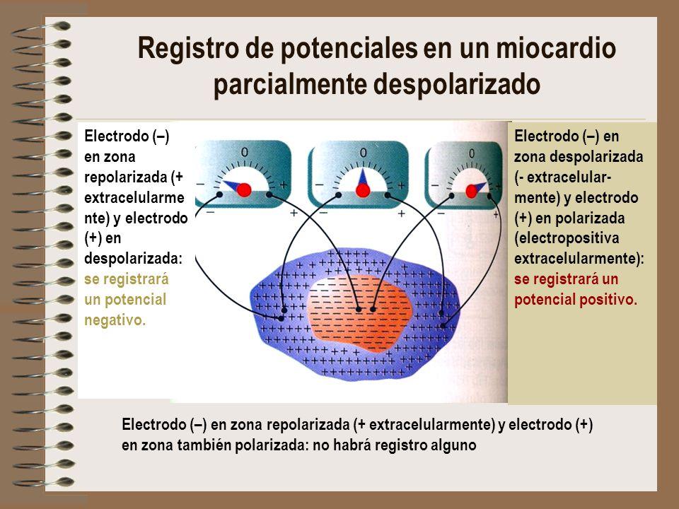 Registro de potenciales en un miocardio parcialmente despolarizado