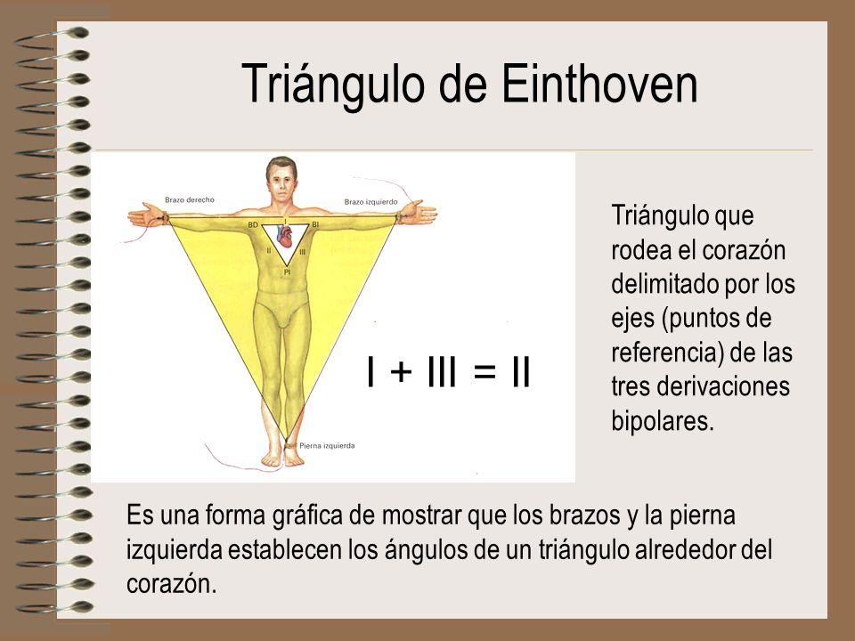 Triángulo de Einthoven