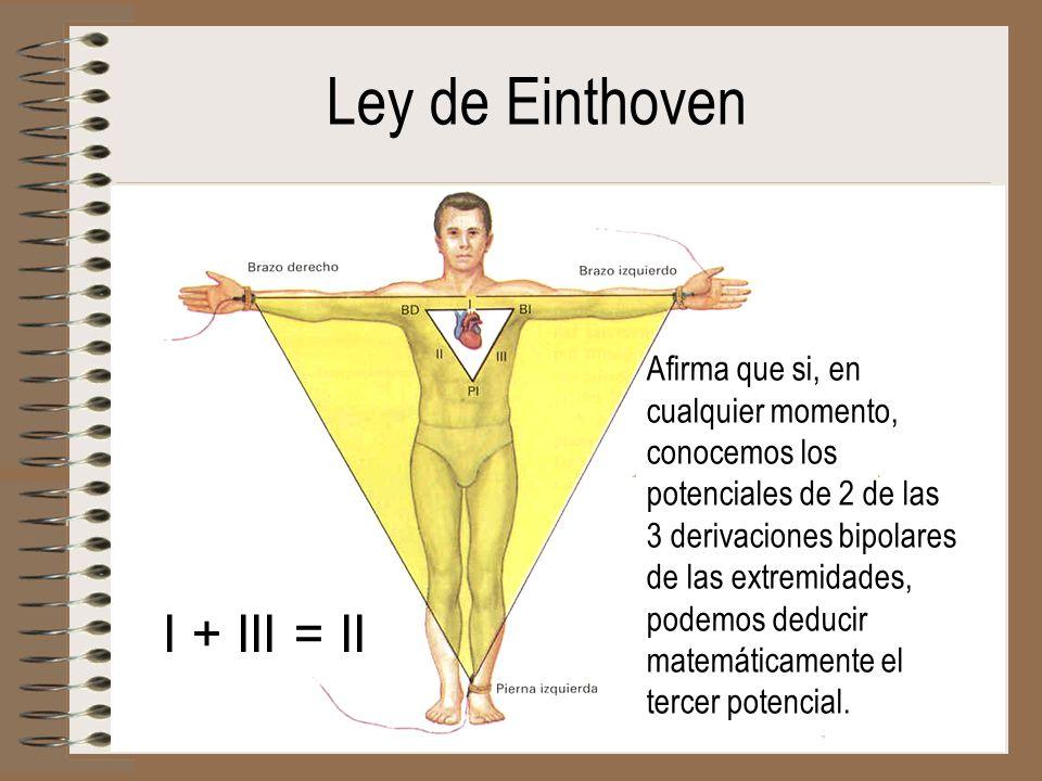 Ley de Einthoven I + III = II