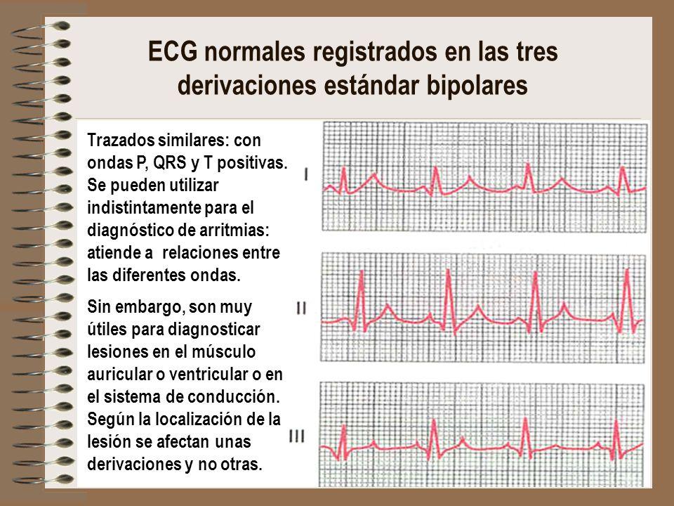 ECG normales registrados en las tres derivaciones estándar bipolares