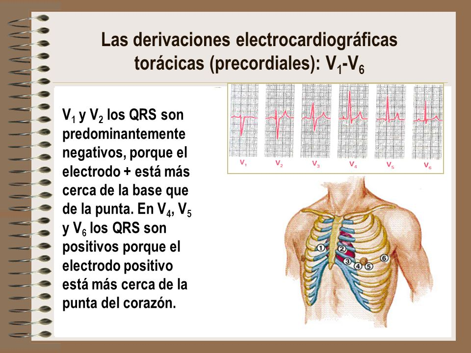 Las derivaciones electrocardiográficas torácicas (precordiales): V1-V6