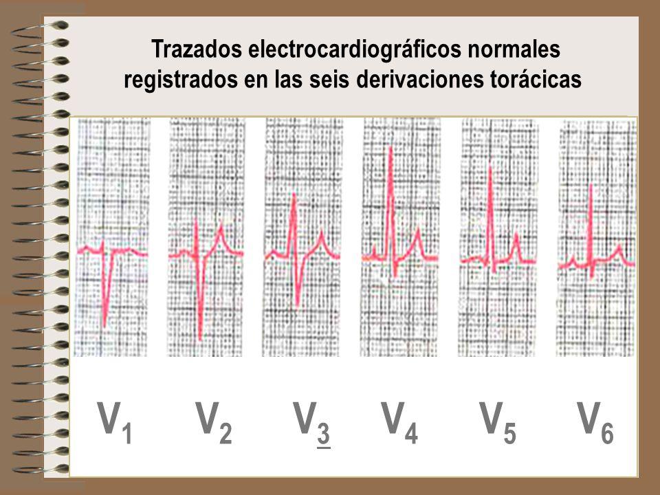 V1 V2 V3 V4 V5 V6 Trazados electrocardiográficos normales
