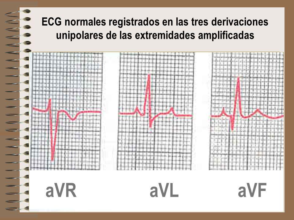 aVR aVL aVF ECG normales registrados en las tres derivaciones