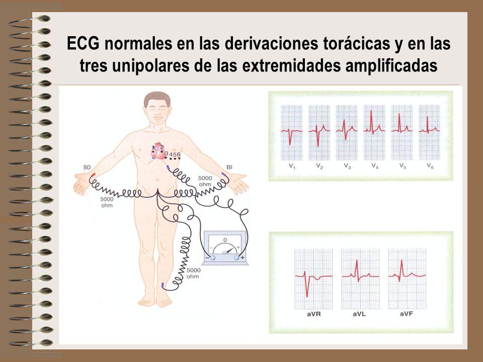 ECG normales en las derivaciones torácicas y en las tres unipolares de las extremidades amplificadas