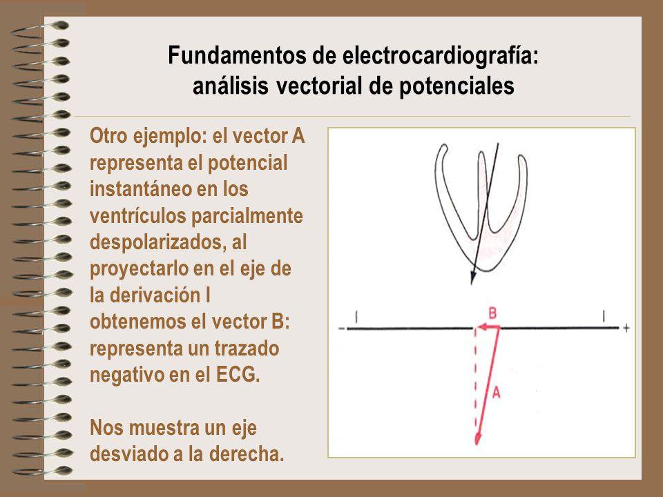 Fundamentos de electrocardiografía: análisis vectorial de potenciales