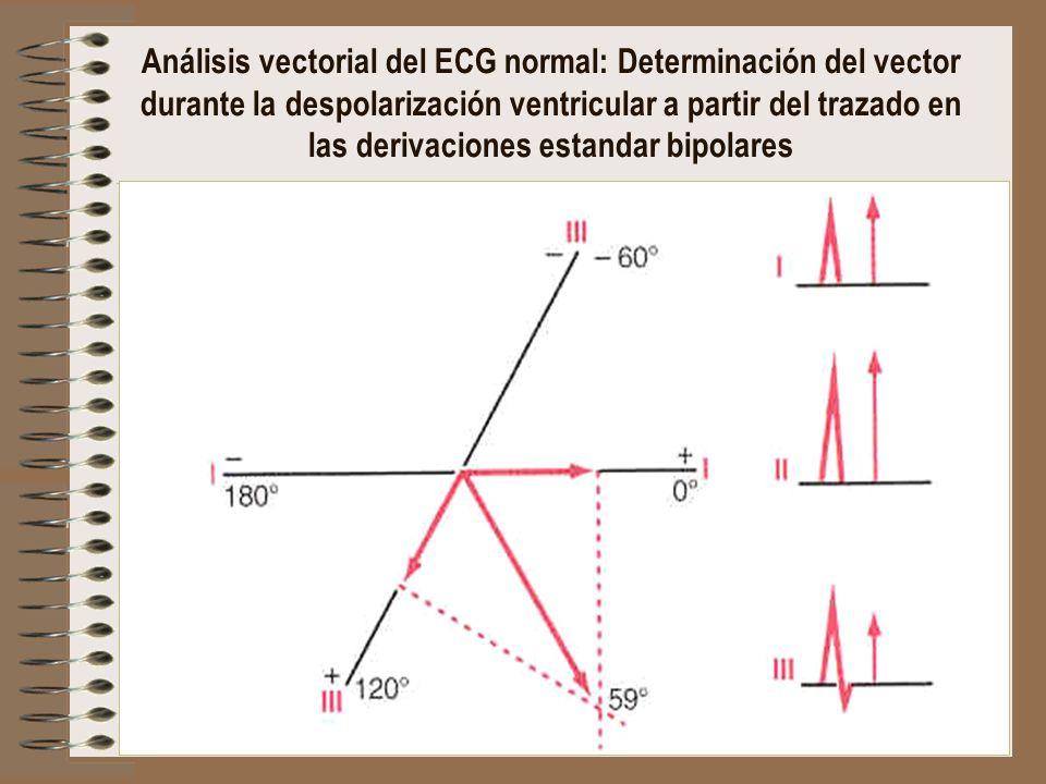 Análisis vectorial del ECG normal: Determinación del vector durante la despolarización ventricular a partir del trazado en las derivaciones estandar bipolares