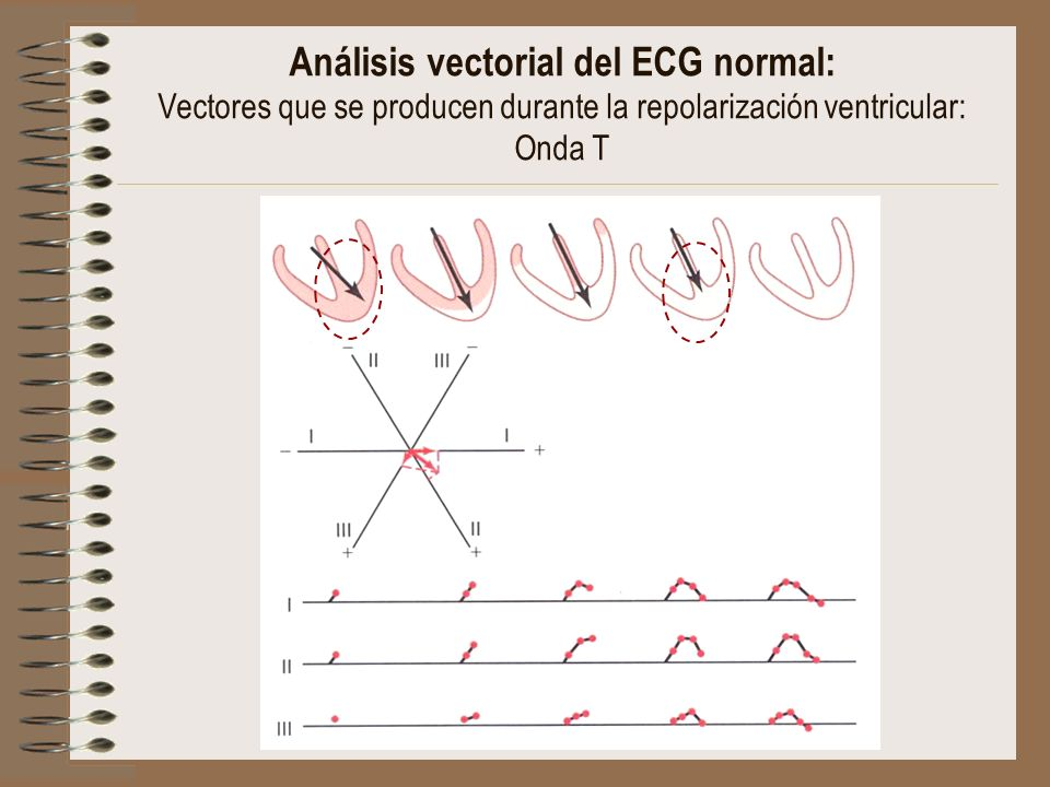 Análisis vectorial del ECG normal: