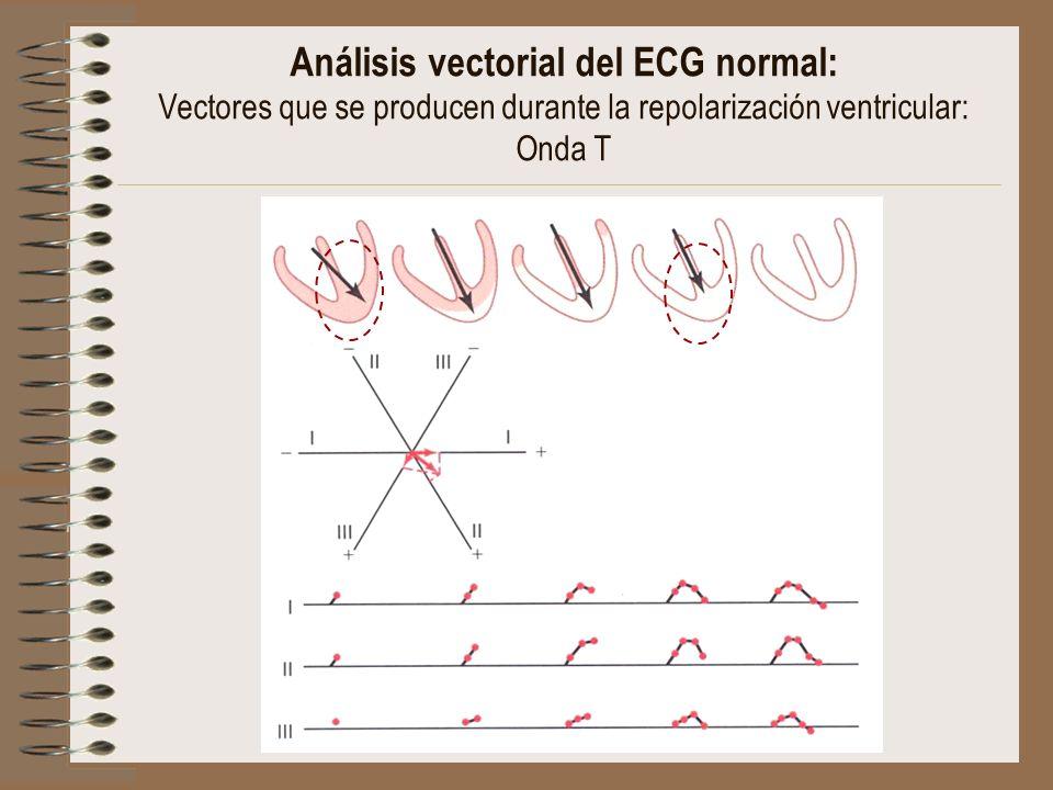 Análisis vectorial del ECG normal: