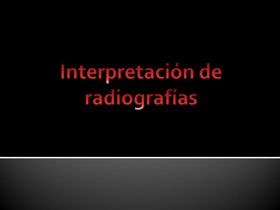 Interpretación de radiografías