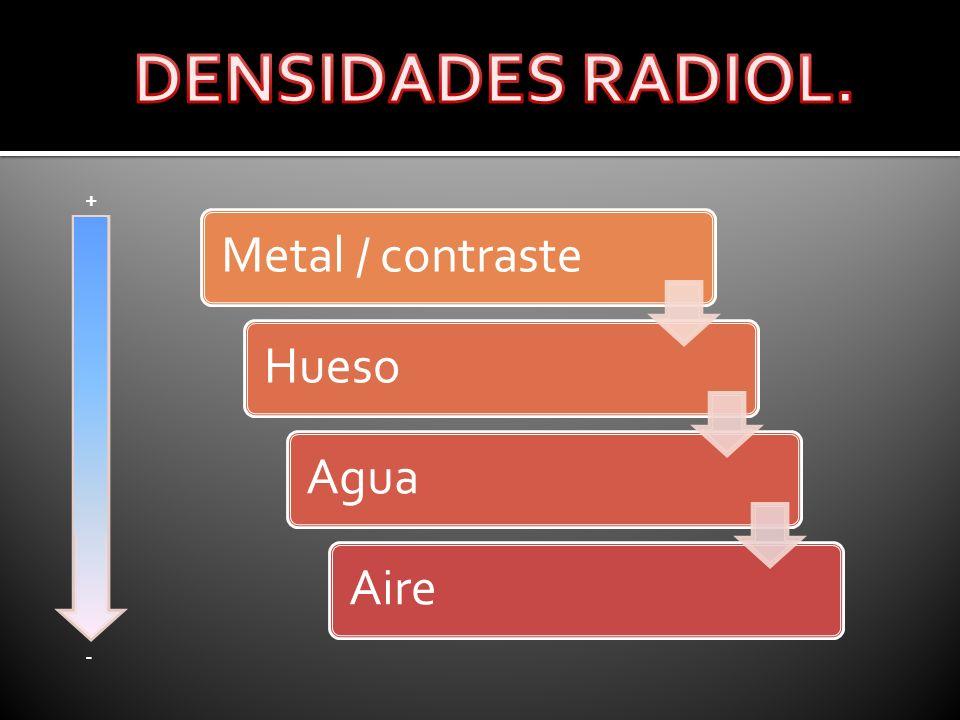 DENSIDADES RADIOL. + Metal / contraste Hueso Agua Aire -