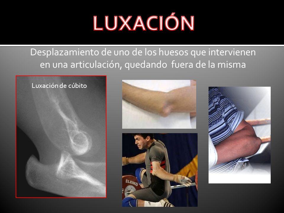 LUXACIÓNDesplazamiento de uno de los huesos que intervienen en una articulación, quedando fuera de la misma.