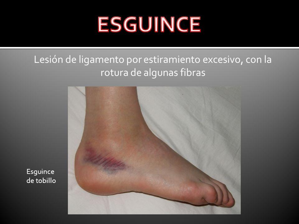 ESGUINCE Lesión de ligamento por estiramiento excesivo, con la rotura de algunas fibras. Esguince.