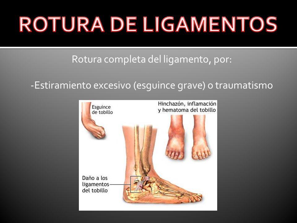 ROTURA DE LIGAMENTOS Rotura completa del ligamento, por: