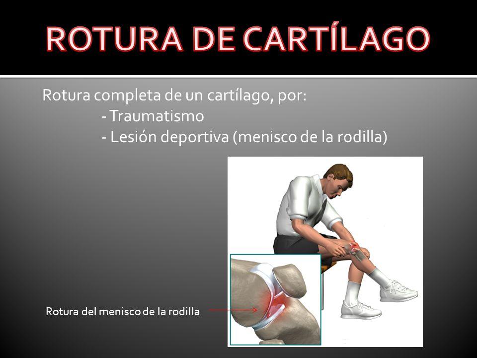 ROTURA DE CARTÍLAGO Rotura completa de un cartílago, por: