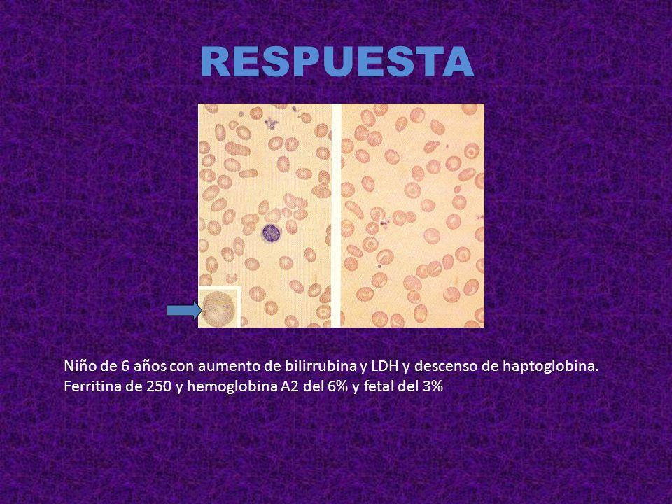 RESPUESTA Niño de 6 años con aumento de bilirrubina y LDH y descenso de haptoglobina.
