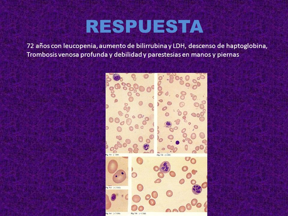 RESPUESTA 72 años con leucopenia, aumento de bilirrubina y LDH, descenso de haptoglobina,