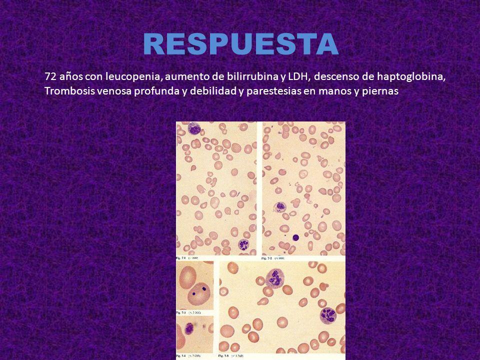 RESPUESTA72 años con leucopenia, aumento de bilirrubina y LDH, descenso de haptoglobina,