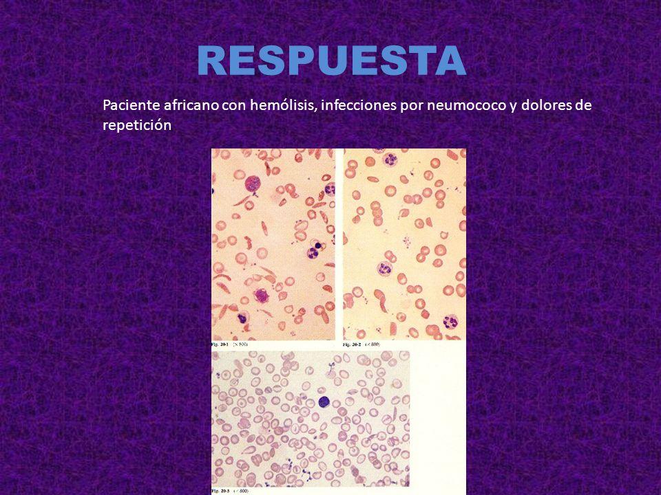 RESPUESTA Paciente africano con hemólisis, infecciones por neumococo y dolores de repetición