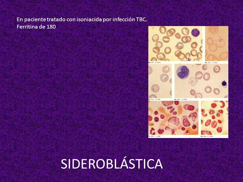 SIDEROBLÁSTICA En paciente tratado con isoniacida por infección TBC.
