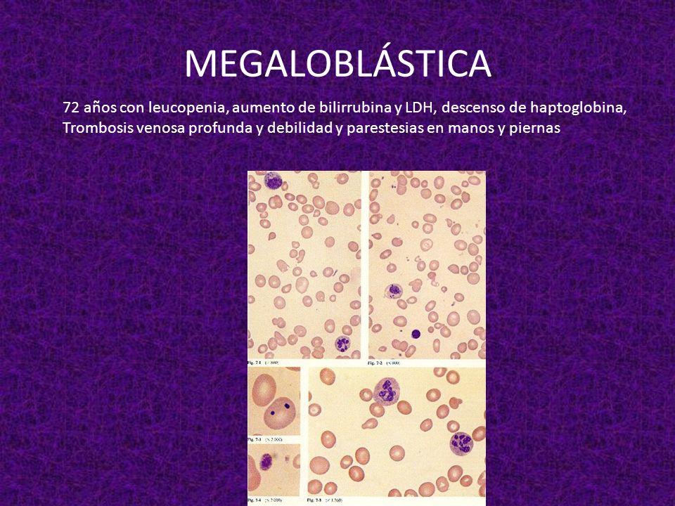 MEGALOBLÁSTICA 72 años con leucopenia, aumento de bilirrubina y LDH, descenso de haptoglobina,