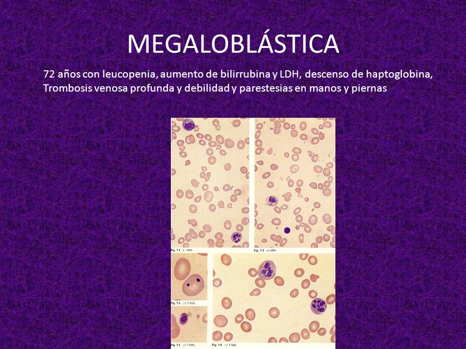 MEGALOBLÁSTICA72 años con leucopenia, aumento de bilirrubina y LDH, descenso de haptoglobina,