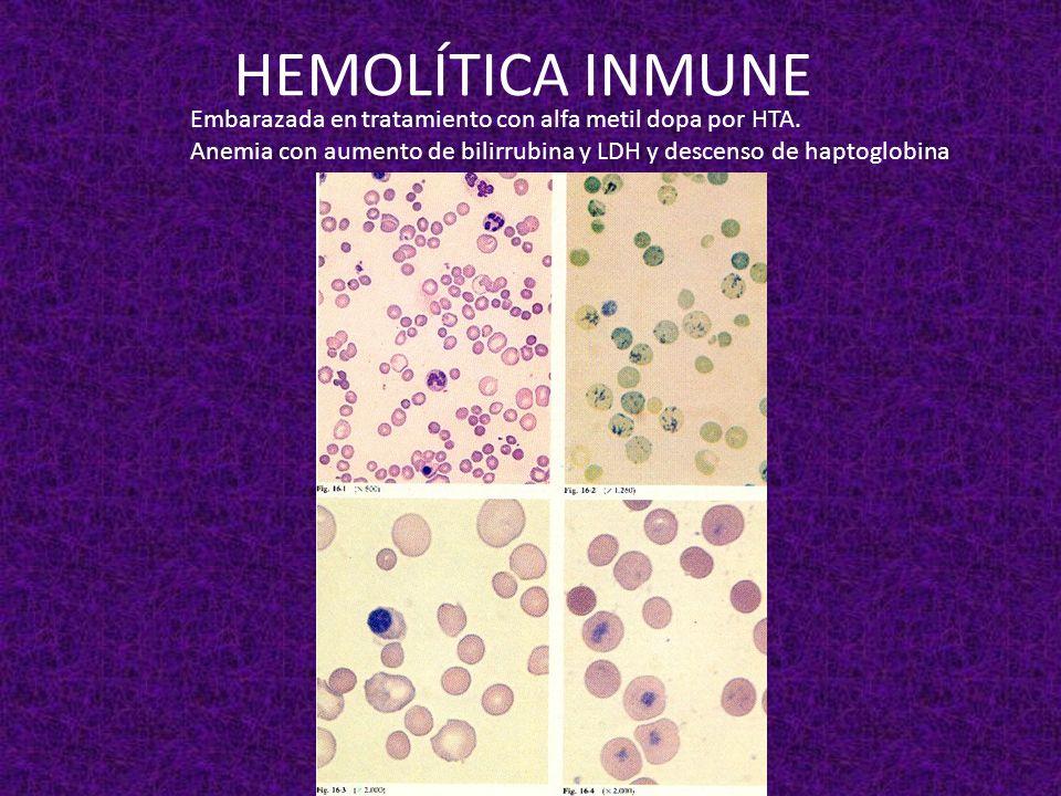 HEMOLÍTICA INMUNE Embarazada en tratamiento con alfa metil dopa por HTA.