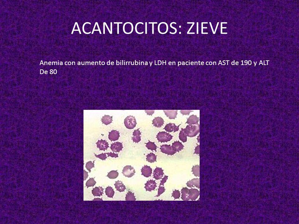 ACANTOCITOS: ZIEVE Anemia con aumento de bilirrubina y LDH en paciente con AST de 190 y ALT De 80